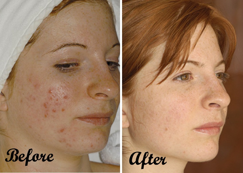 acne-maven-before-after-1