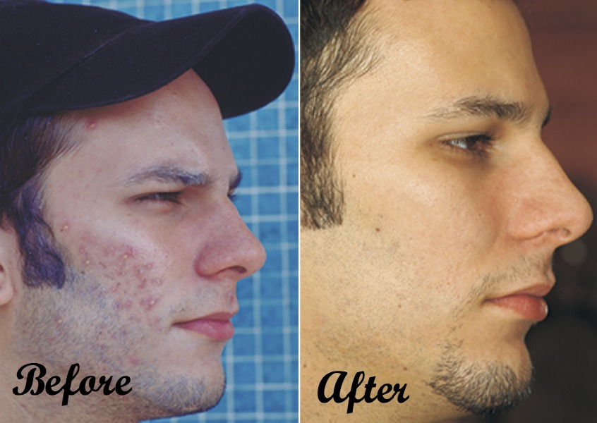 acne-maven-before-after-2